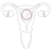 Pastillla vagina 2